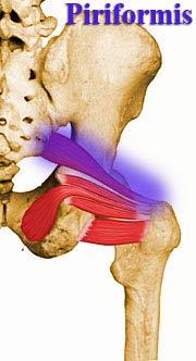 piriformis posture problem